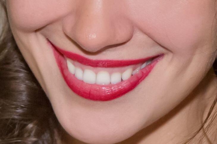 Назван напиток, положительно влияющий на здоровье зубов