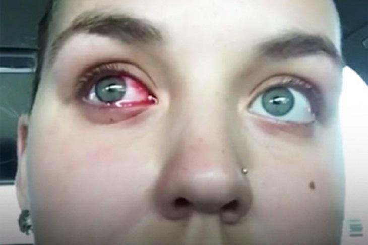 Загадочное заболевание заставило девушку плакать кровавыми слезами
