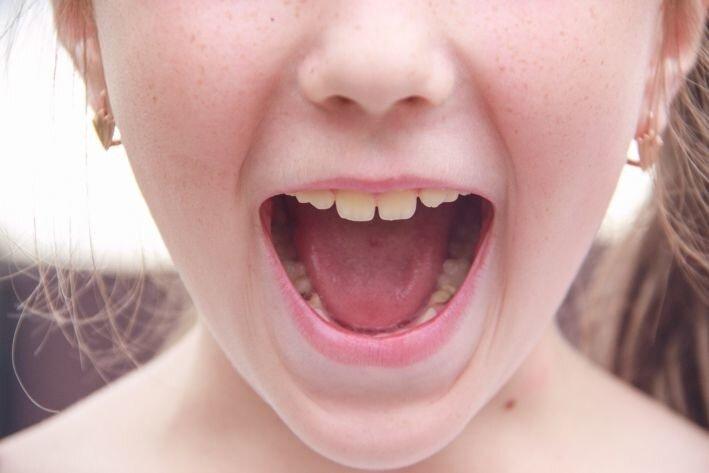 «Волосы встали дыбом»: Подросток заметил лох-несское чудовище – кадры