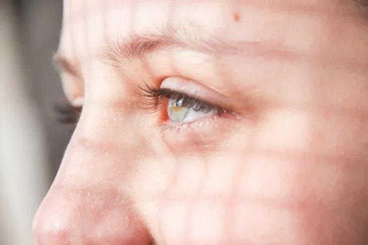 Женщина играла по ночам на телефоне и заработала опасную глазную болезнь