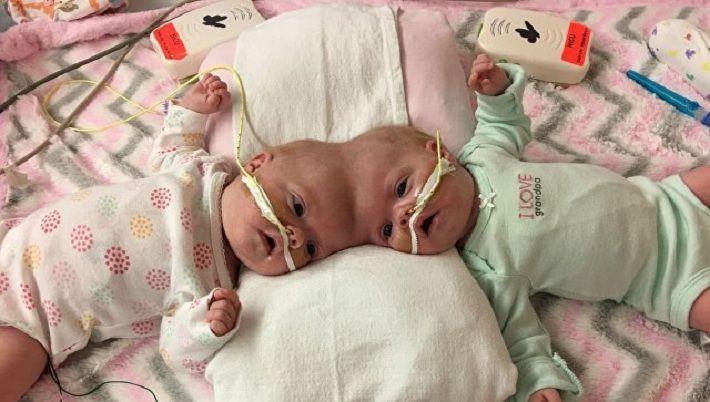 Хирурги поделили сиамских близнецов собщей головой