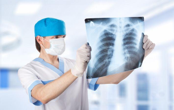 В России ученые научились лечить рак рентгеном