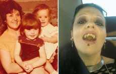 Женщина-вампир из Австралии не выходит на солнце уже 20 лет
